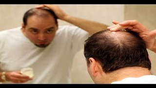 Natural Remedies To Treat Hair Loss. You Should Try